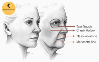 Dermal Fillers in Delhi, Dermal Fillers Treatment, Wrinkle